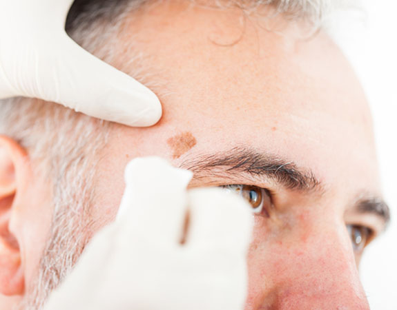 Dermatology P C  - Dermatologists in Des Moines, Ankeny and